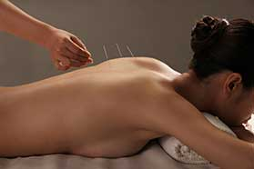 acupuncture for lower back pain New Port Richey, FL