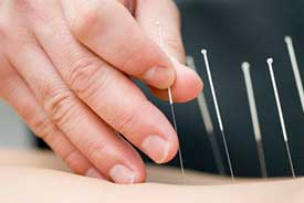 Acupuncture for Weight Loss Hurst, TX