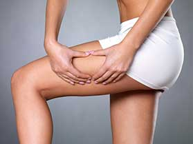 Extracorporeal Shock Wave Cellulite Treatment in Bel Air, CA